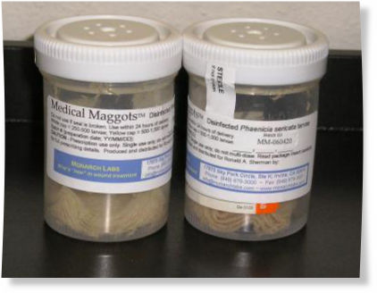 chronic post-surgical wounds and diabetic foot ulcers. Now, maggot
