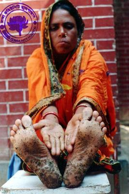 arsenic project sufferer