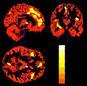 Magnetic resonance imaging of the brains