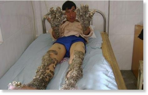 New tree man: coral man has 'shells' cut from his body ...
