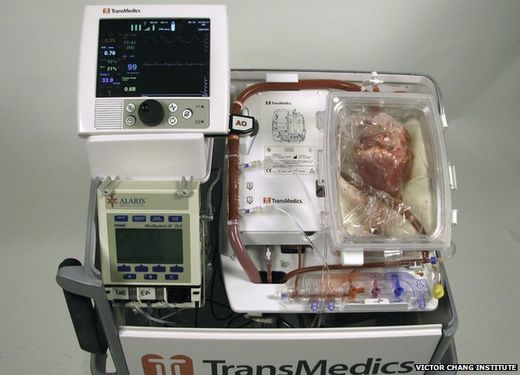 Australian doctors complete the world's first 'dead heart' transplant