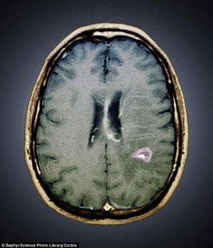 zombie brain anatomy