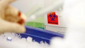 bacteria leak lab