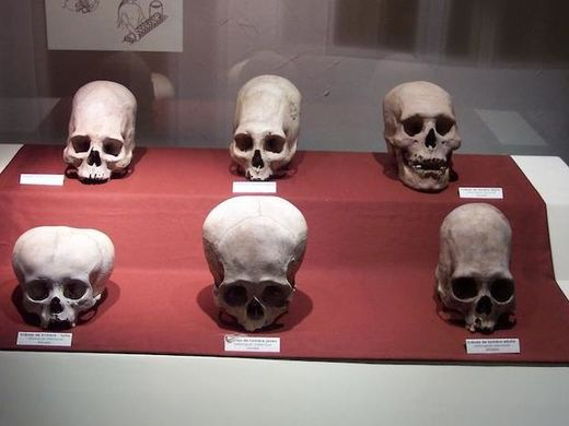 Elongated Peruvian skulls DNA tested: Not human?