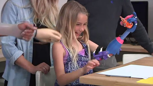 7-year old California girl gets 3D-printed prosthesis for $50