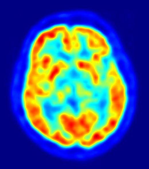 Neurodegenerative disease risk as new prion is discovered