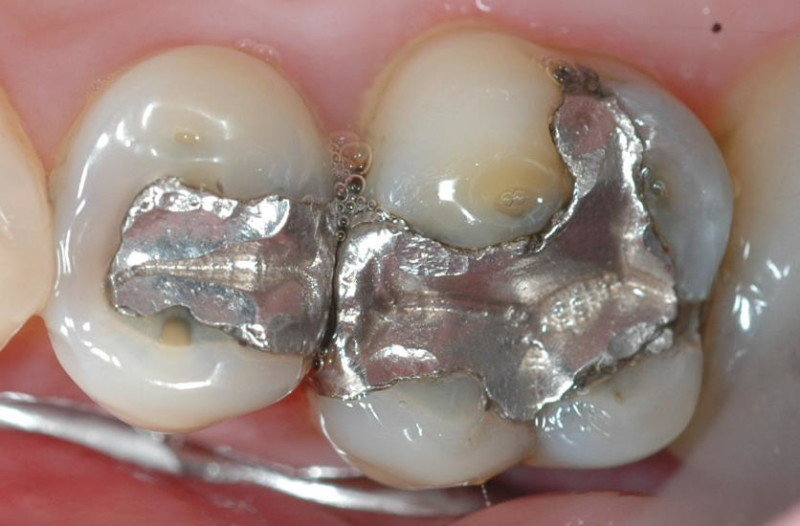 European union bans amalgam fillings for children and pregnant or european union bans amalgam fillings for children and pregnant or nursing women health wellness sott solutioingenieria Images