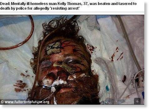 dead  mentally ill homeless