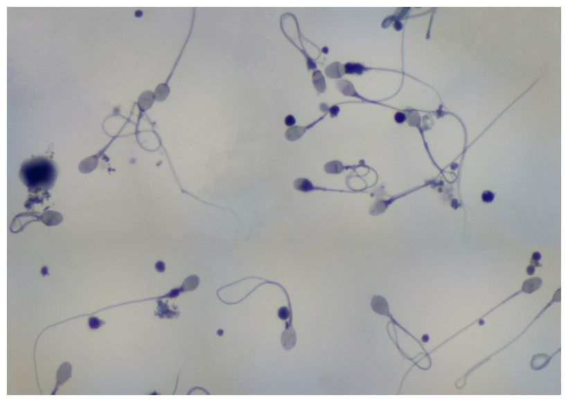 povishennoe-proizvodstvo-spermi