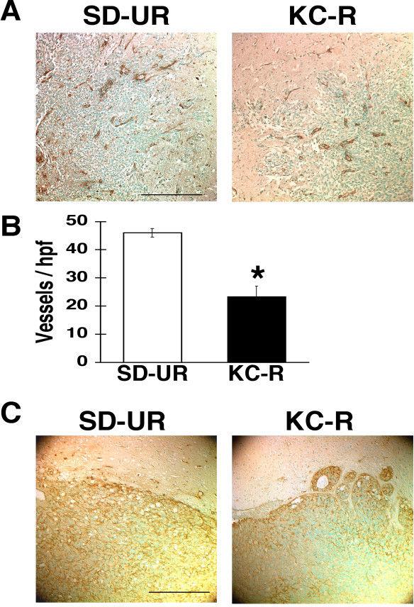 Ketogenic Diet To Fight Brain Cancer | KetogenicDietPDF.Com