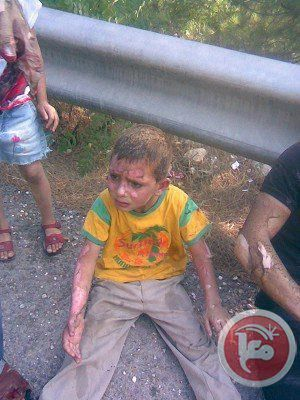 Palestinian child injured by molotov