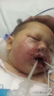 baby injured by raid