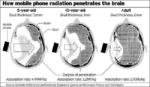 radiation brains