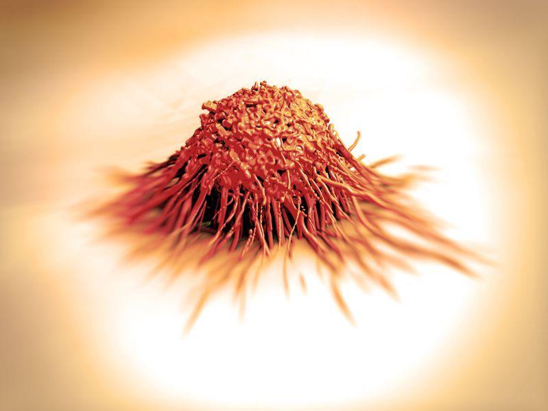 Natural Cure For Glioblastoma