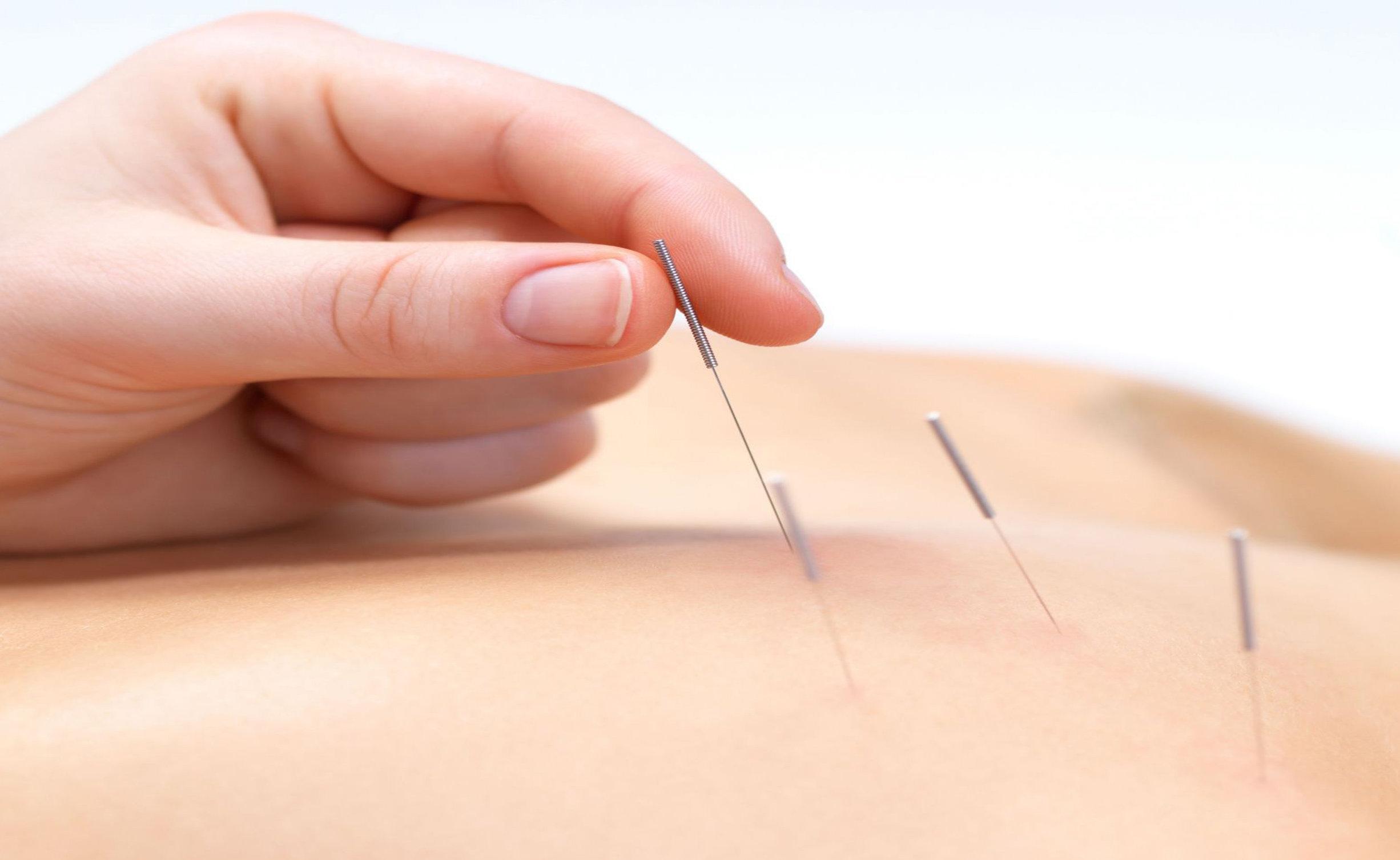 12 Cara Mengatasi Sakit Pinggang Saat Hamil Muda dan Hamil Tua