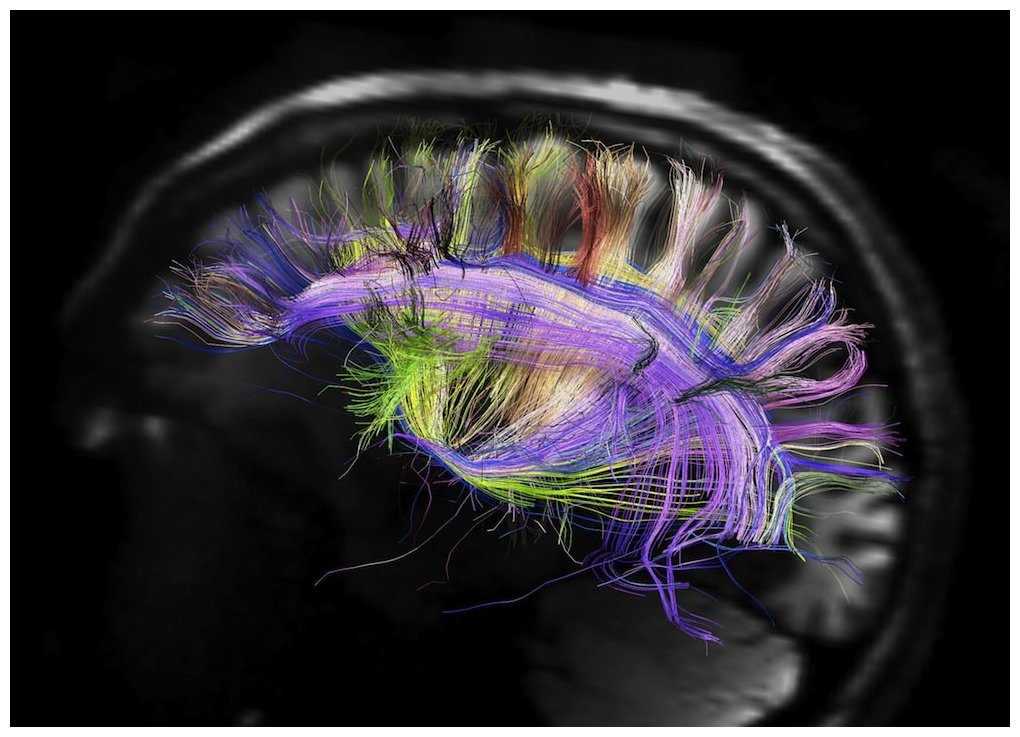 The Human Brain Can Store The Entire Information On The Internet