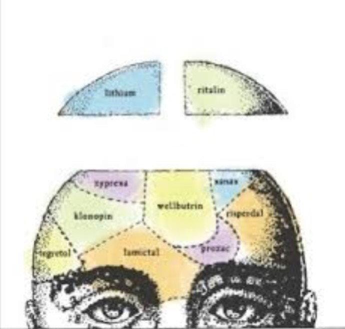 Schizophrenia: An Overview