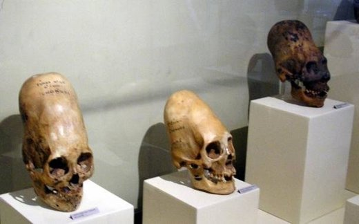 DNA from 2,000-year-old elongated Paracas skulls changes known history