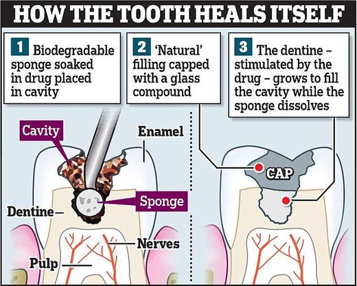 healing tooth