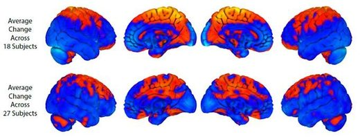 The top row shows brain changes with long duration bed rest; the bottom row shows brain changes with spaceflight. Orange shows regions of increase; blue = decrease. There is some overlap but also notable differences with spaceflight showing more changes in the cerebellum, a structure that is involved in motor learning. Credit: U. Michigan