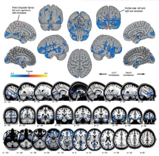 Grey matter volume changes Blue shows areas of grey matter volume decrease, likely reflecting shifting of cerebrospinal fluid. Orange shows regions of grey matter volume increase, in the regions that control movement of the legs. Credit: U. Michigan