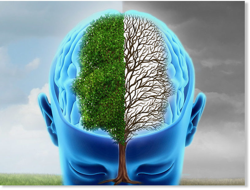 Bipolar Disorder  What is it Can it be treated