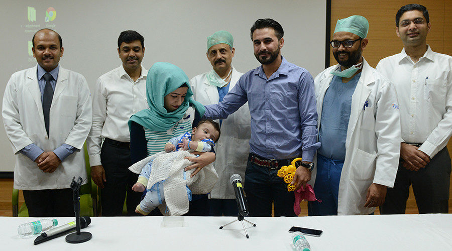 8limbed baby undergoes successful 3stage surgery in