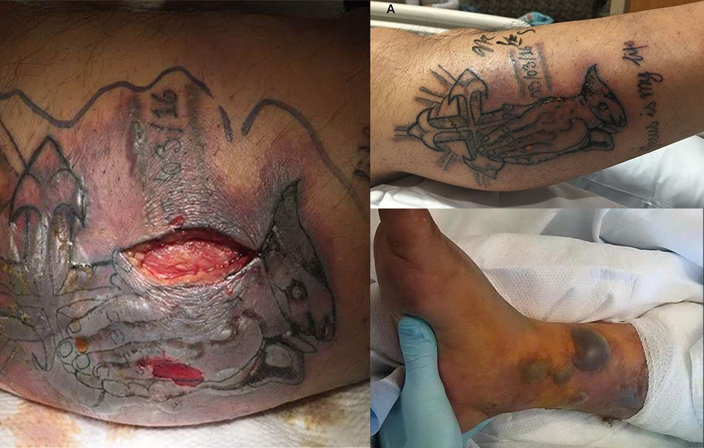 man dies after tattoo becomes infected with flesh eating