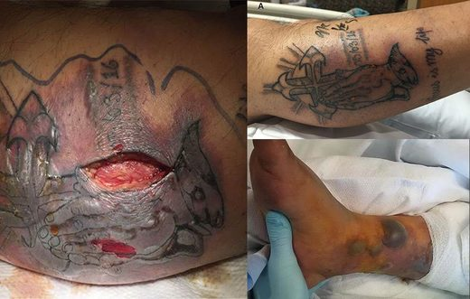 Vibrio vulnificus infection, infected tattoo