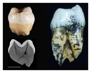 Ancient Human Tooth