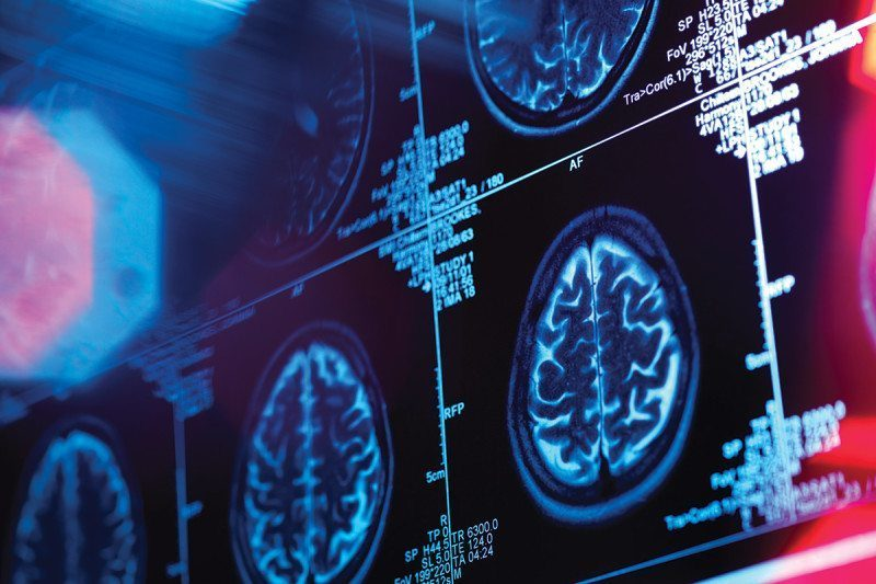 Neuroforecasting: Scanning your brain can predict what will