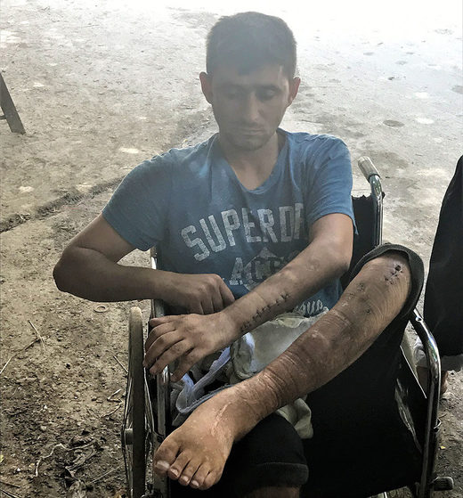 Another resident from the Qaterji area shows us his injuries from a Nusra Front mortar attack
