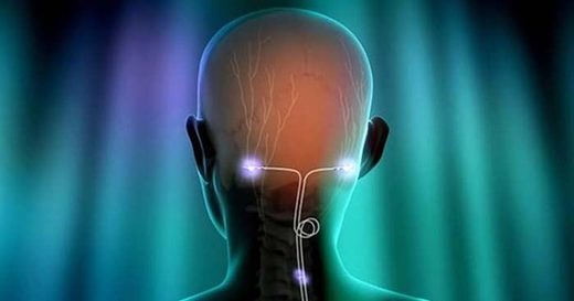 Vagal nerve stimulation, vagus nerve