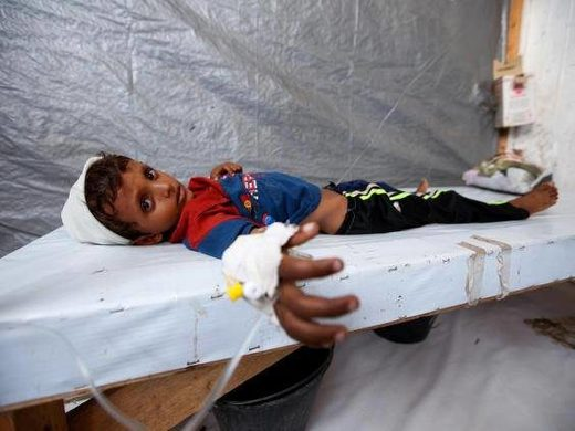 Saudi war on Yemen Cholera child victim