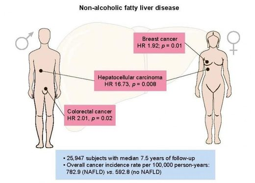 Non-alcoholic fatty liver disease increases risk of liver, colorectal, and breast cancers