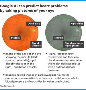 Problemas del corazón de Google AI