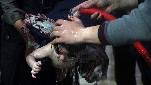 A child is treated in a hospital in Douma
