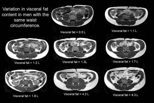 The Age of Metabolic Syndrome - Inflammatory Fat Is Worse Than Obesity