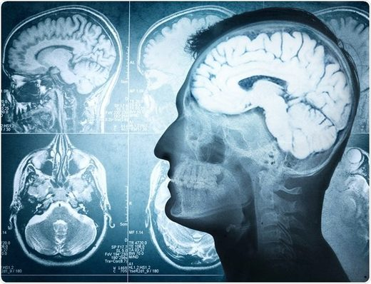 New Study: Human brain stays alive for hours after death