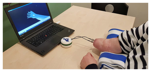 Hand prosthesis being tested