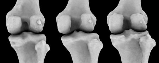 The fabella, tiny knee bone once lost in humans, is making a comeback