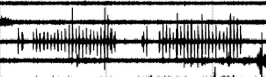 Oklahoma acoustic anomaly -  pattern, twice. Two pulses followed by a gap, followed by 24 pulses.