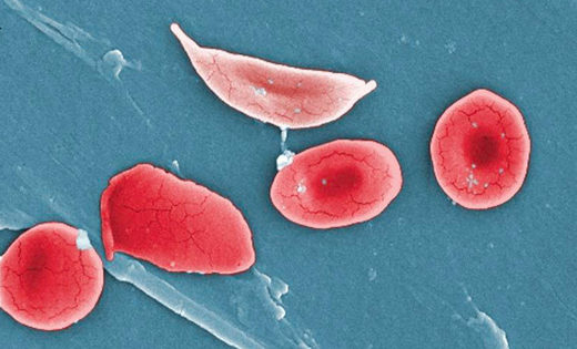 CRISPR sickle-cell