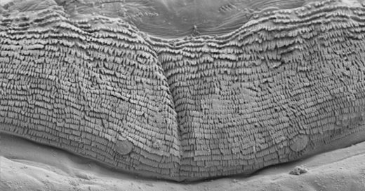 electron microscope fly larvae