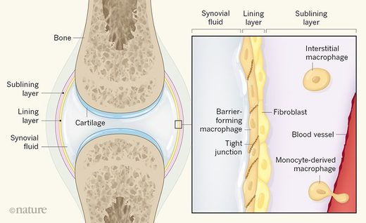 mapcrophages cartilage joints