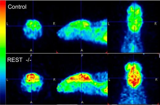 mouse brain MRI