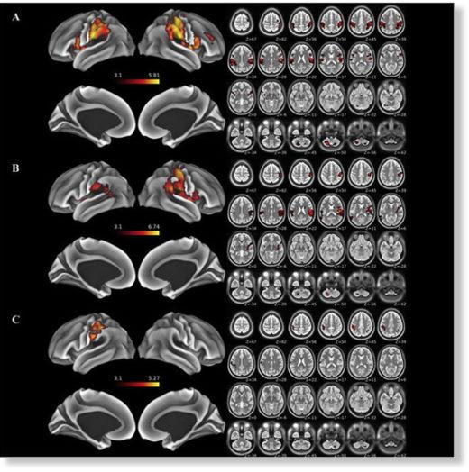 brain injury MRI