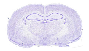 Cross-section of rat brain