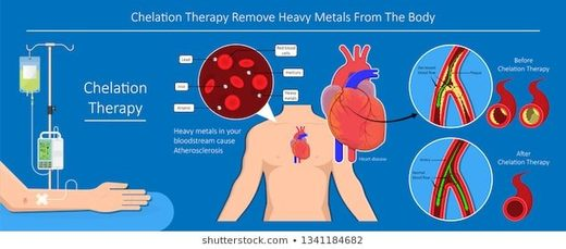 chelation, heavy metals