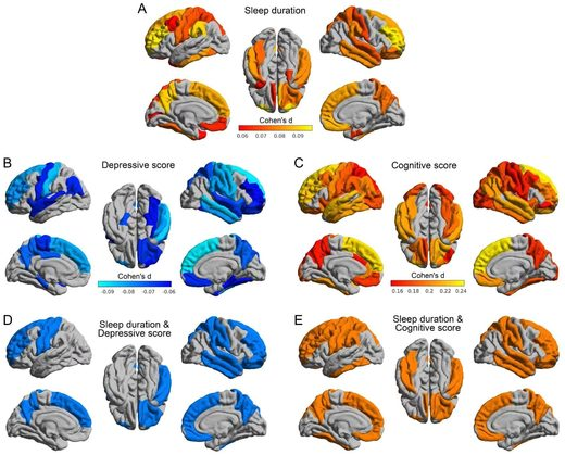 sleep duration brain scans